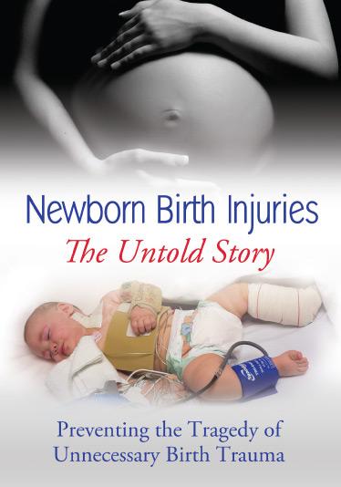brachial plexus injury birth - photo #14